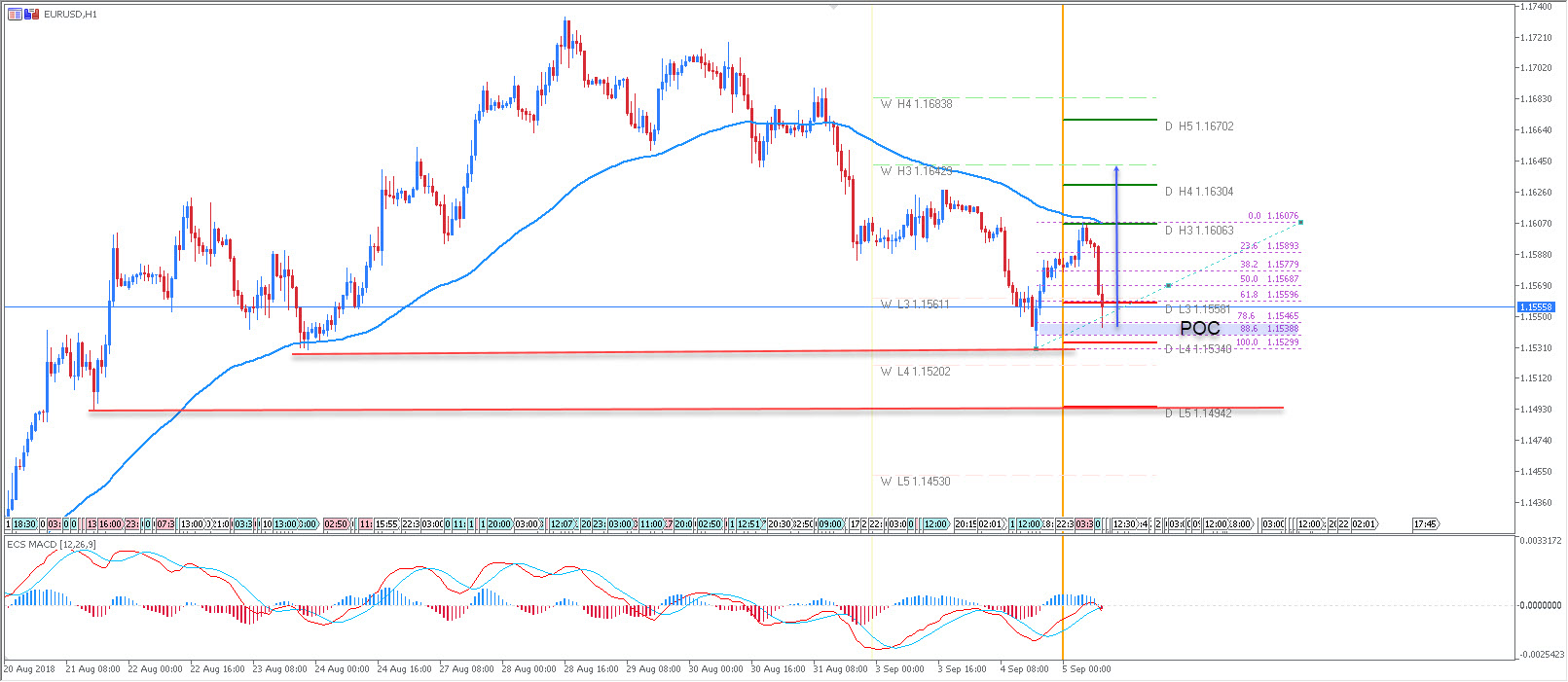 EUR/USD Might Start a Move Towards 1.1650